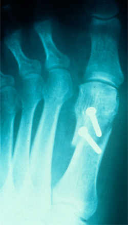Fracture: Toe and Metatarsal